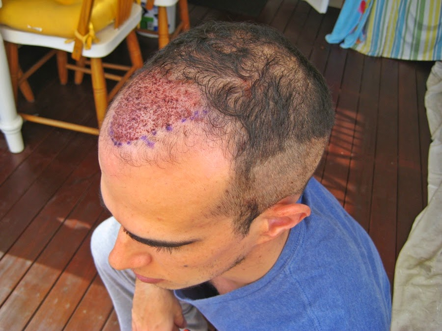 Hair Transplant Surgery and Its Centre's in India