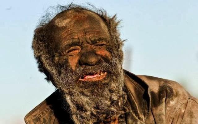 Selama 60 Tahun, Orang Ini Tidak Pernah Mandi dan Membersihkan Diri