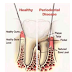 DISEASES OF THE GUMS