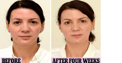 Πως πίνοντας 3 λίτρα νερό την ημέρα αλλάζει το πρόσωπο