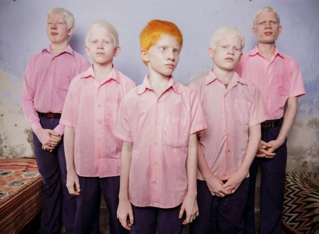 Niños albinos ciegos