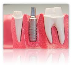 Dental Implants Arizona