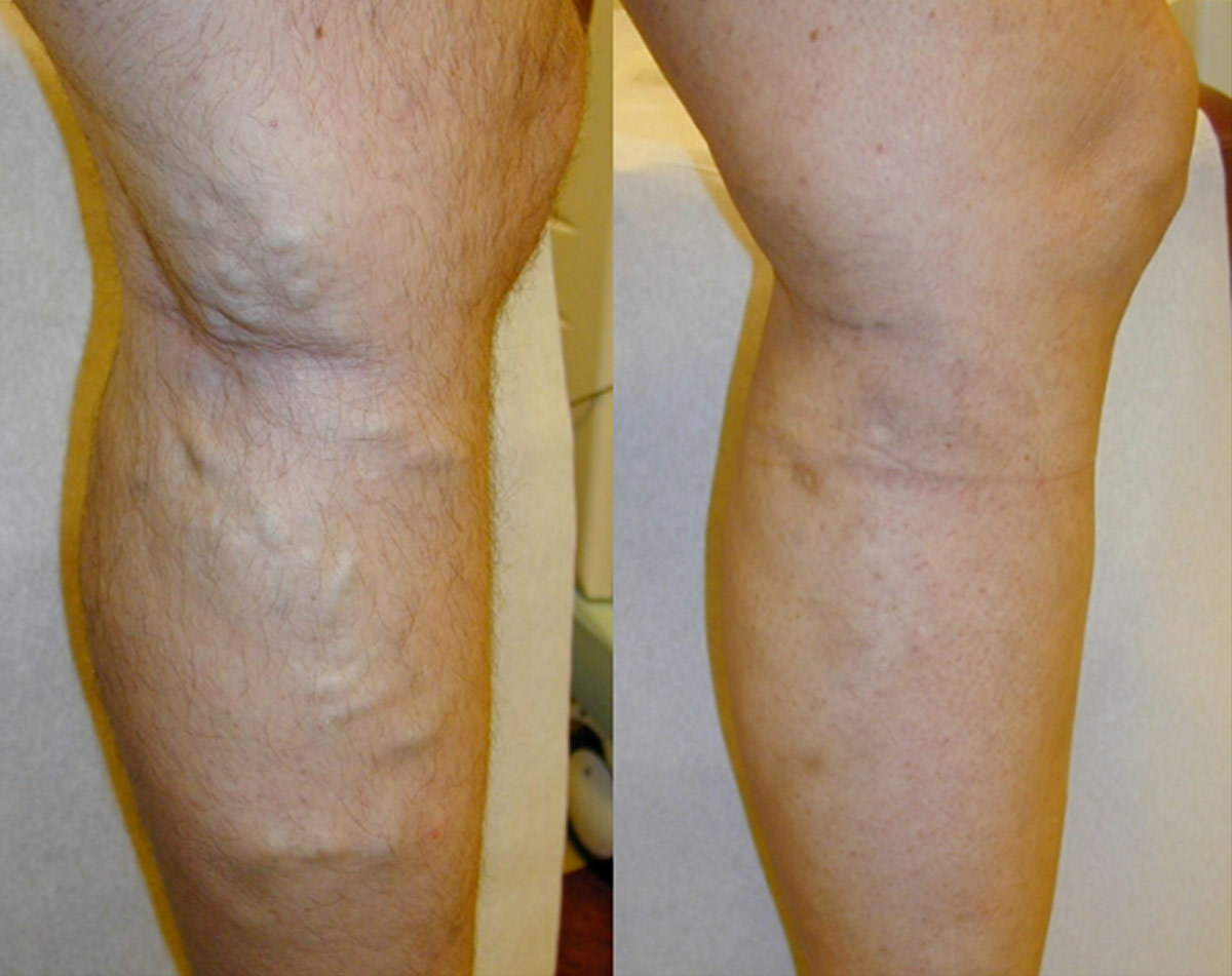 How varicose veins begin, and how to avoid this problem