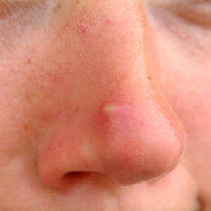 Image result for Whiteheads on face