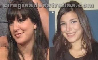 Cirugía de Andrea Rincon