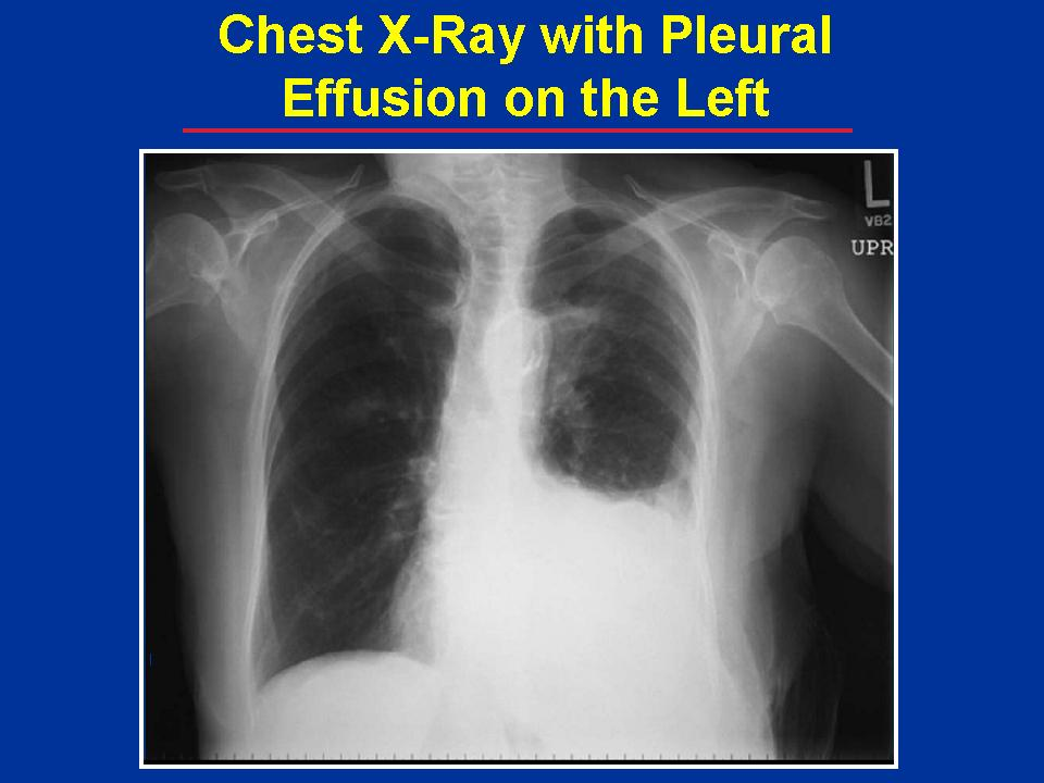 Janet Kay Jensen, Author: X-Rays and Chest Tubes and Blebs ...