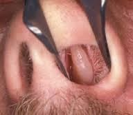 Cara Menyembuhkan Polip Hidung