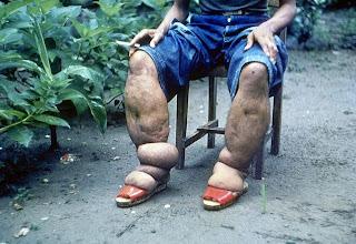 Imagen que expone un caso de elefantiasis afectando a las piernas