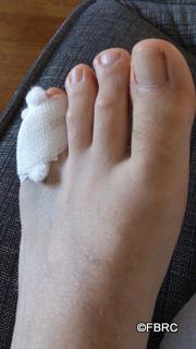 mal au petit doigt de pied