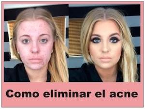 Limpia tu rostro de las inperfecciones