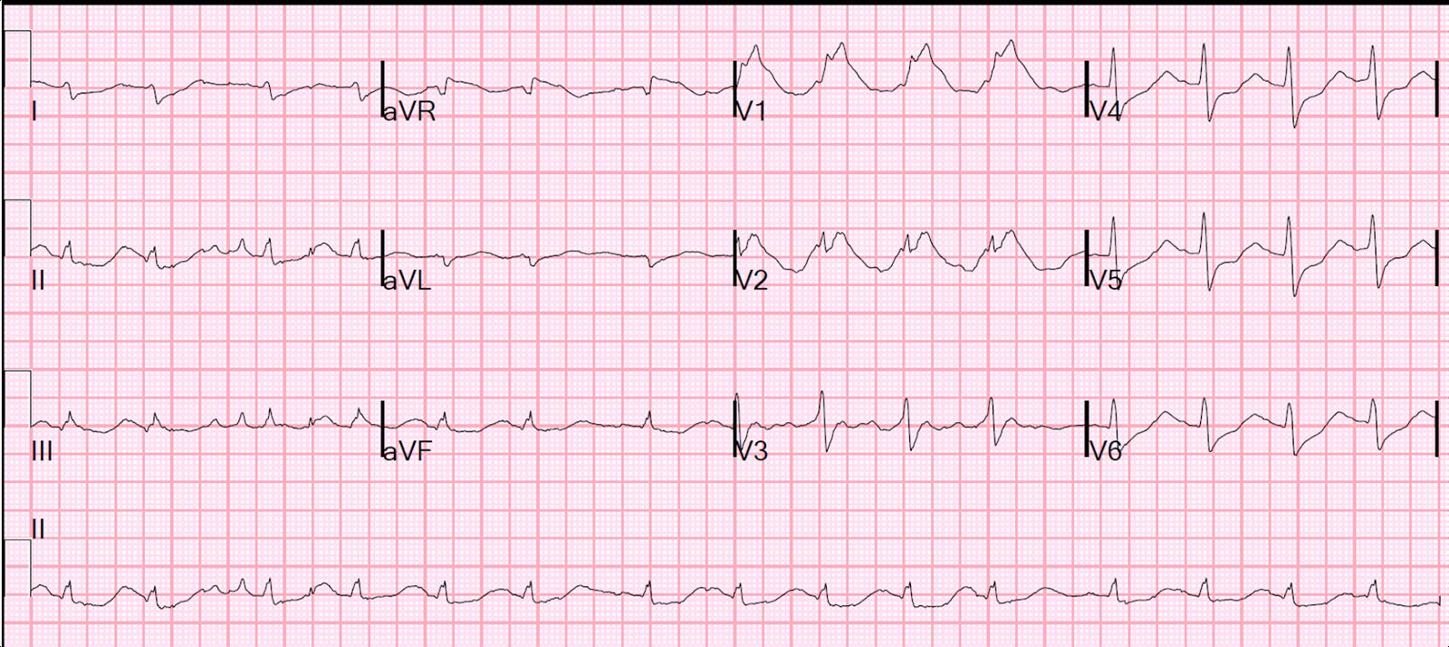 how to avoid cardiac arrest