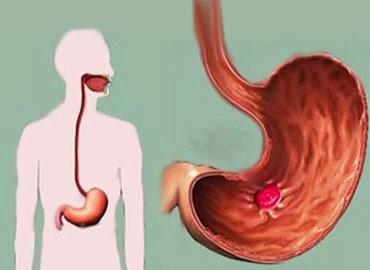 5 Desventajas de Consumir Ácido Acetilsalicílico o Aspirina