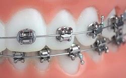 Cara Memutihkan Gigi Berbehel Antonioeriasrey13