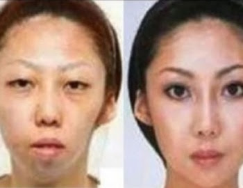 """Falsa beleza"": Chinês Processa Esposa POR ter Feito plástica"