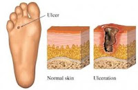 DIABETIC FOOT ULCERATIONS