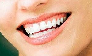 Rajin Senyum