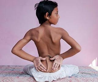 niño con cola en la India
