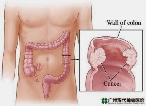 kanker usus besar stadium 4