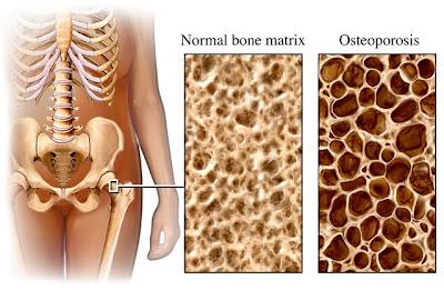 Cara Mencegah Osteoporosis
