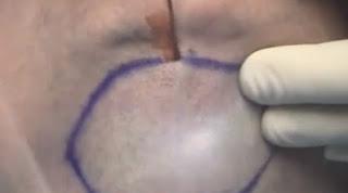 lipolisis laser en papada