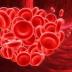 Cara Mengobati Darah Beku