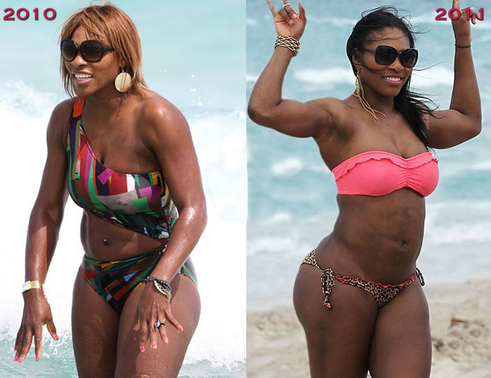 Serena Williams Plastic Surgery Chatter Busy Bollywood