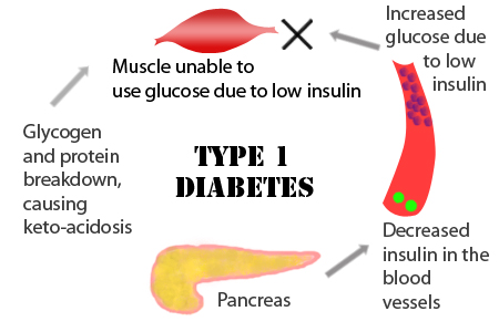 diabetes type wikipedia symptoms comp