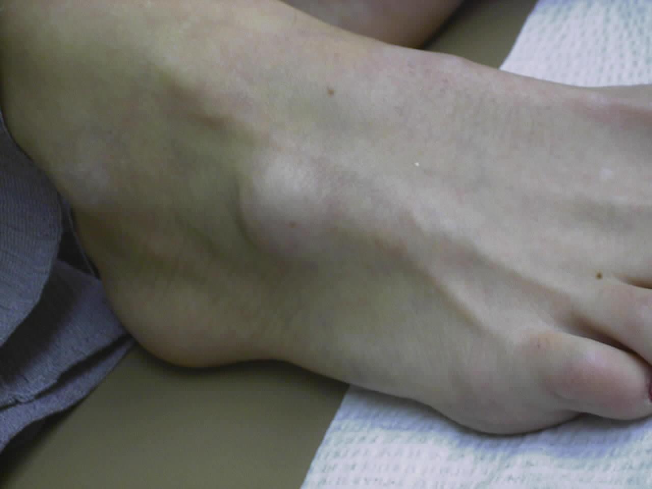 senknuta på foten