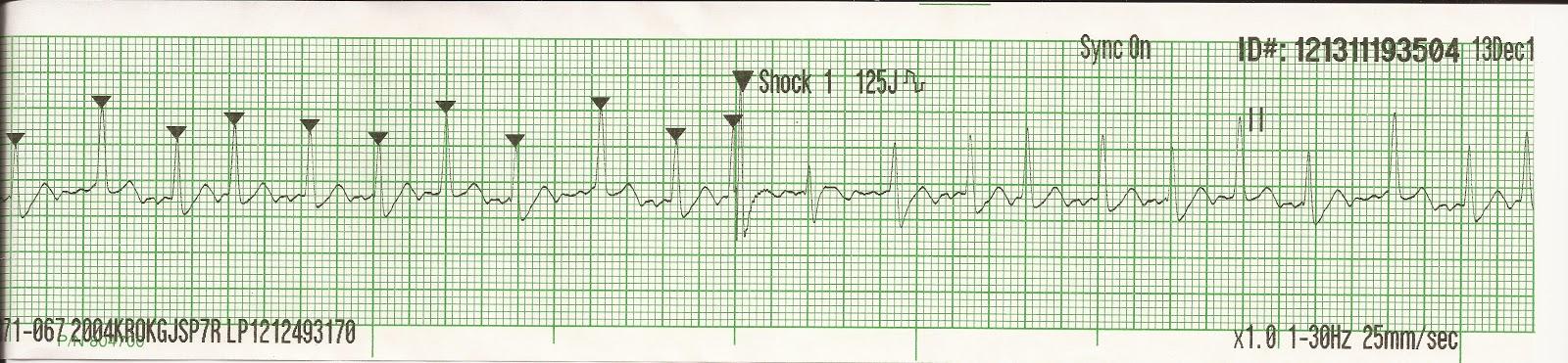 Atrial Fibrillation Strip