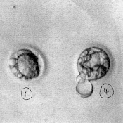 5 day old embryos