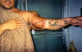 Gregg Valentino brazo