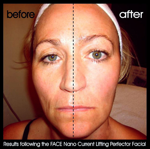 Face Exercises for Sagging Cheeks