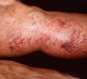 Come là ha luogo loperazione a varicosity di gambe