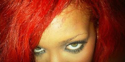 Rihanna com a testa queimada