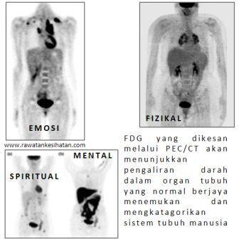 Sistem tubuh dapat dikenalpasti melalui ujikaji suntikan FDG ke jantung