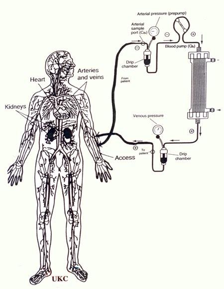 hemodialysis devices  extracorporeal circuit
