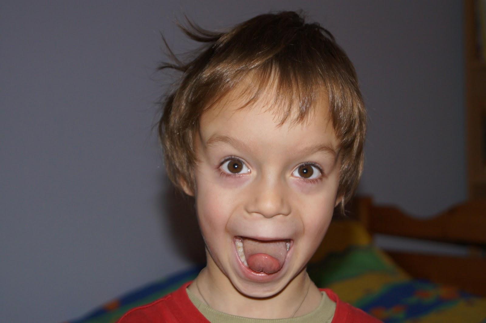 Фото ребенка с алкогольным синдромом