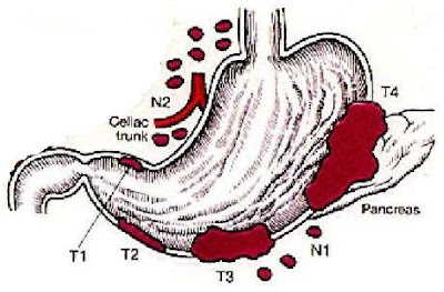 liver cirrhosis and gallbladder problems