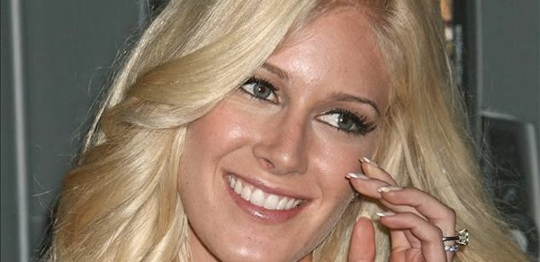 heidi montag scars life and style. Weekly Life amp; Style gives