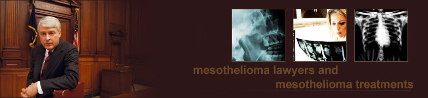 lawyers and law:mesothelioma lawyers,asbestos lawyers,accident injury lawyers