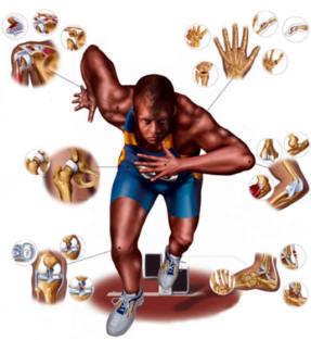 lesiones en el deporte: