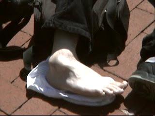 gambar keseleo terkilir ankle