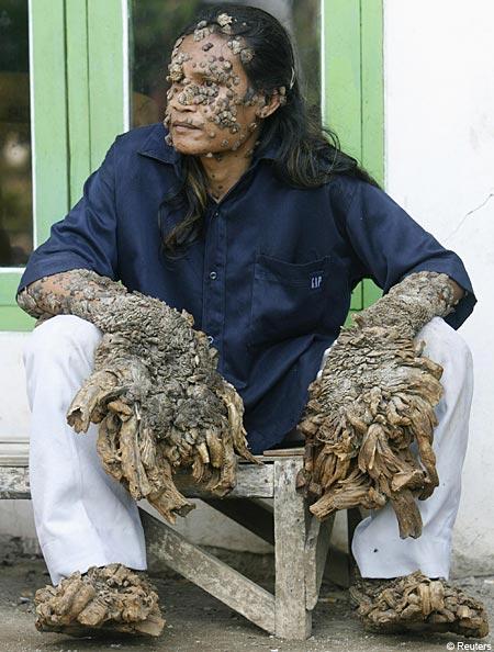 manusiapohon  indonesia, 10 Keanehan manusia di Asia yang mengejutkan dunia . natural.co.id