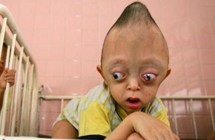 conehead  montok, 10 Keanehan manusia di Asia yang mengejutkan dunia . natural.co.id