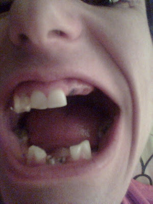 Karlene, anorexic, loss of teeth