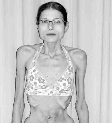 Aimee Moore, after anorexia