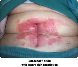 skin excoriation