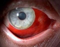 bulimia subconjunctival hemorrhage eye purging