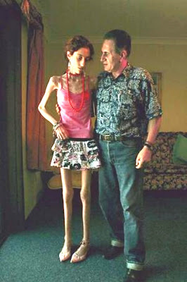 Catena Di Mauro, anorexia