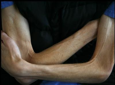 anorexia-Bryan Bixler